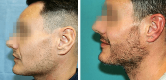 All You Need To Know About Beard Shaping Treatment